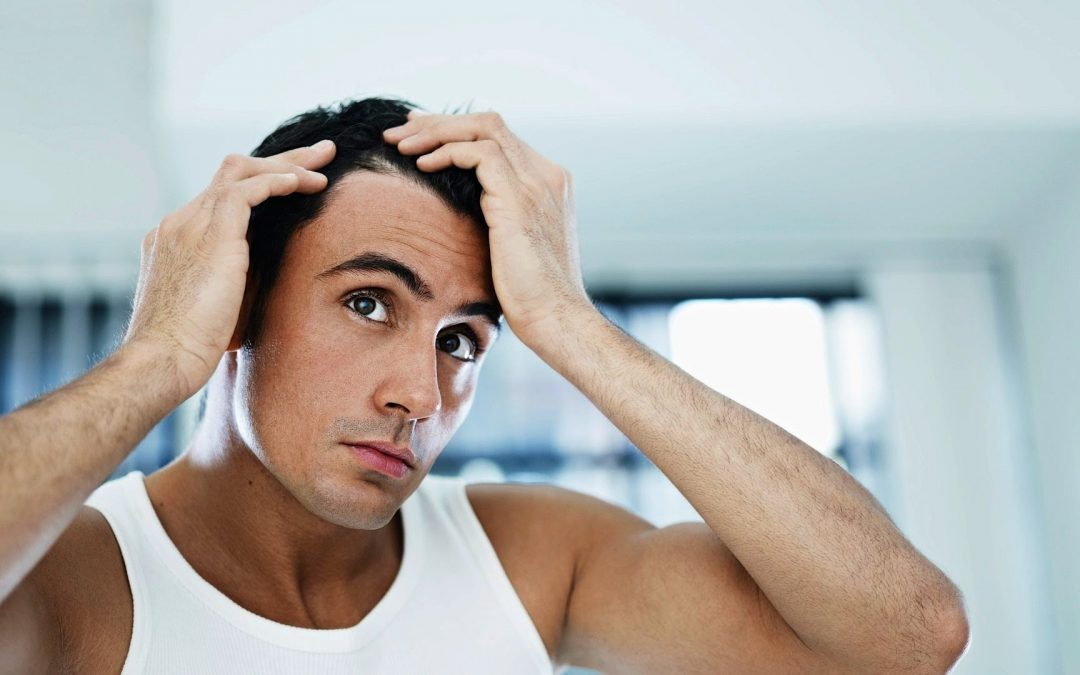How to treat Hair Fall in Men with Minoxidil?